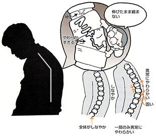 背骨の一部だけが異常に柔らかくなっている状態