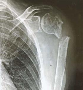 骨が離れているので癒合する可能性はない。骨にネジ止めした後が痛々しい。