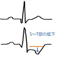 心電図での虚血の見方