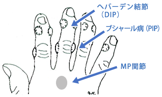 DIP 関節 PIP関節  MP関節の炎症